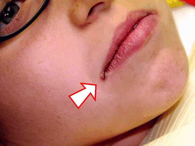 How do I get rid of these sores in the corners of my mouth?