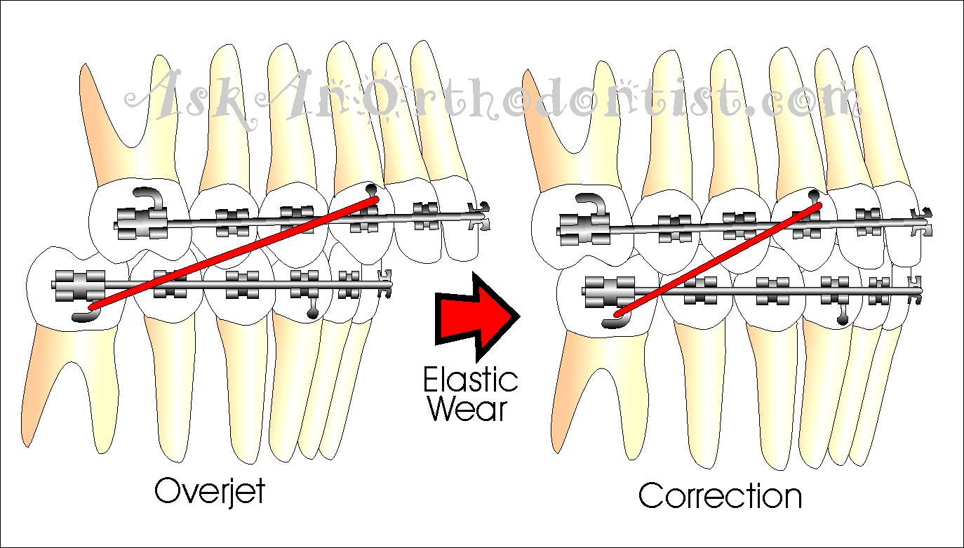 What Do The Elastic Rubber Bands On Braces Do Ask An