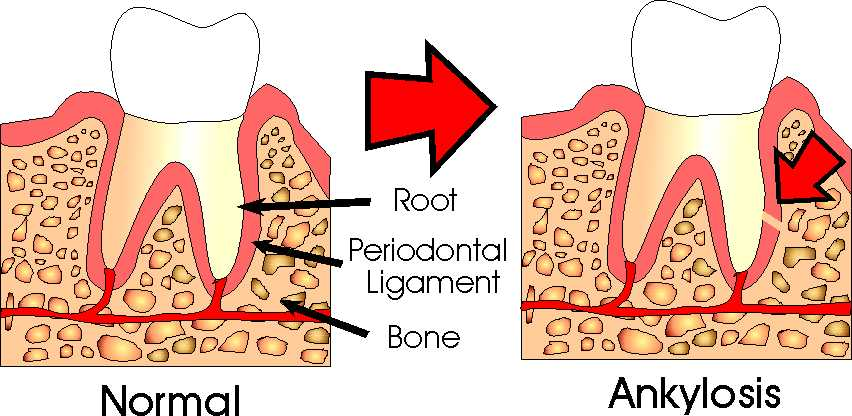 What are ankylosed teeth?
