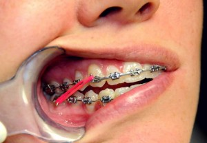 Orthodontic Rubber Bands for Class II Correction