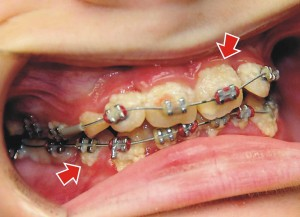 Heavy Plaque on Patient with Braces