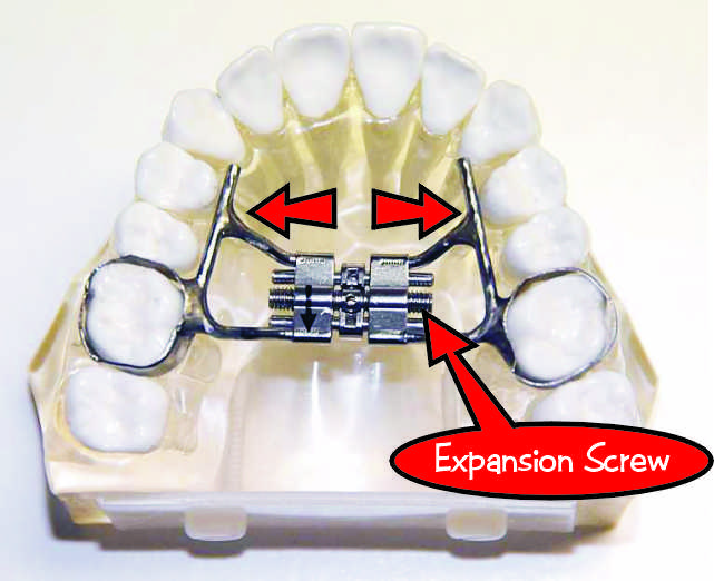 Rapid Palatal Expander - Simister and Leaver Orthodontics