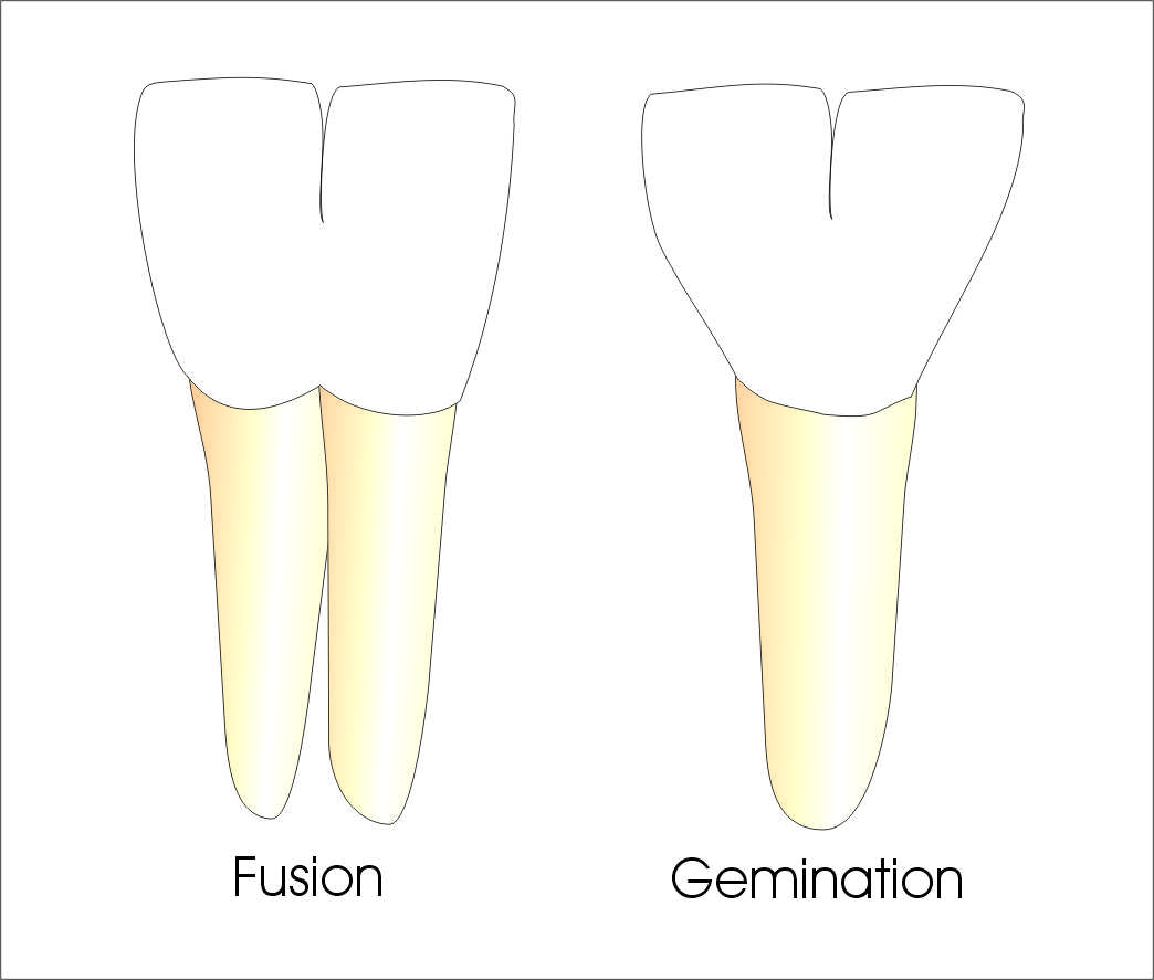 Tooth gemination