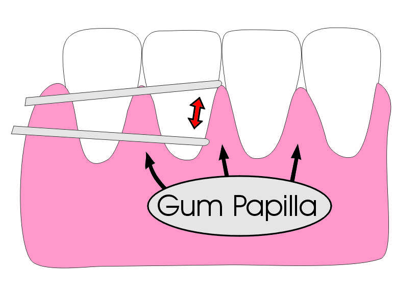 Flossing around Gum Papilla