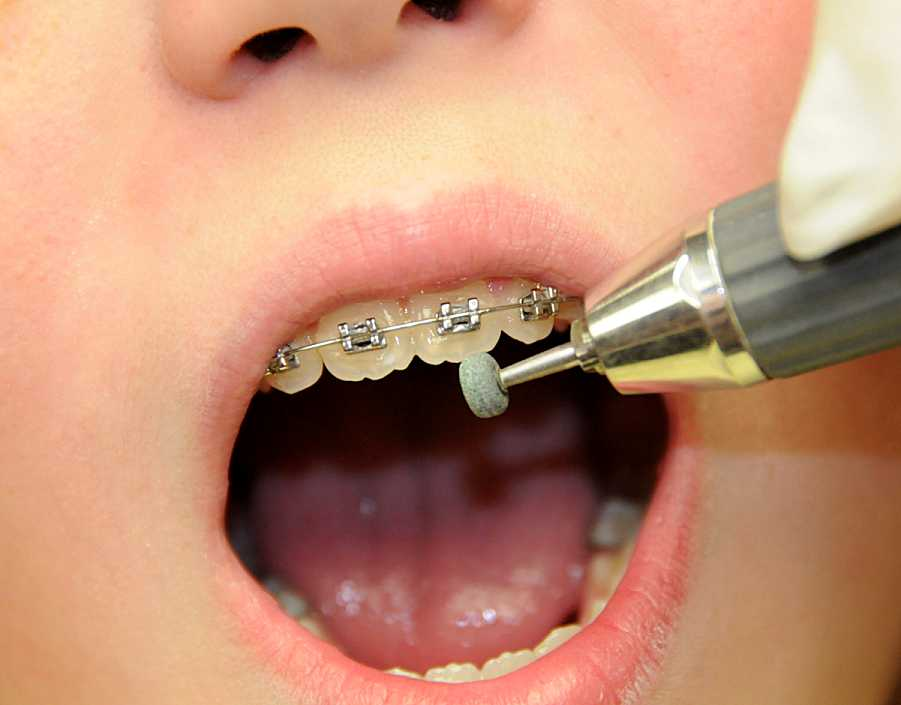 Removing Tooth Mamelons with a Green Stone - Ask an ...